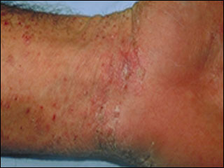 Scabies - All health - Medical Reference Library and Symptom
